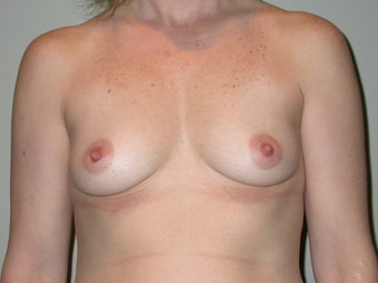 Breast Augmentation before 611768