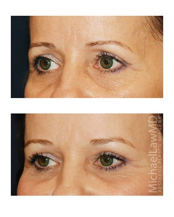 Brow Lift before 495496