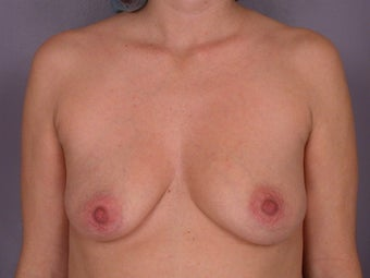 Breast Lift / Breast Augmentation  before 290962
