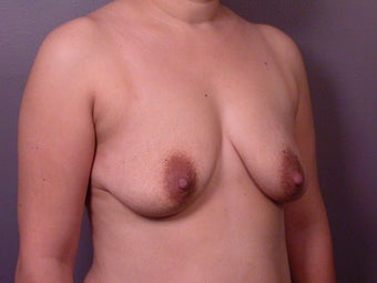 Breast Lift / Breast Augmentation   before 291004