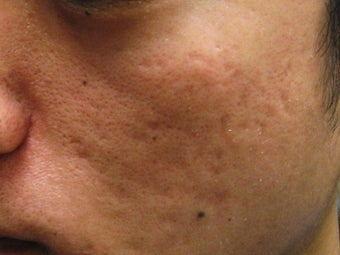 Artefill treatment of Acne Scars before 272000