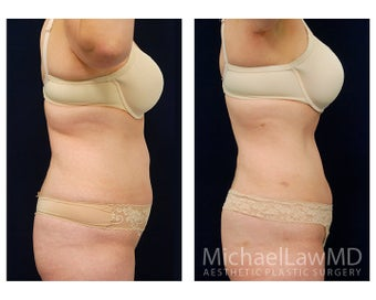 Liposuction 397201