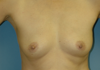 Bilateral Breast Augmentation before 520949