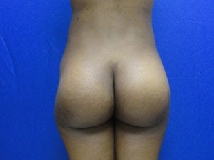 23 year old buttock implants after 644071