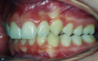 Orthodontic braces to correct a Class II malocclusion before 404703