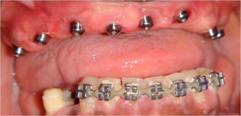 Dental Implants to replace full arch of teeth before 328056