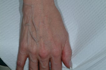 Sclreotherapy for the hands before 92032