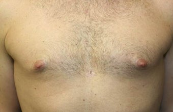 Smart-Lipo of the Chest, Liposuction, Gynecomastia before 402440
