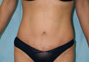 Local Anaesthetic Tummy Tuck after 344435
