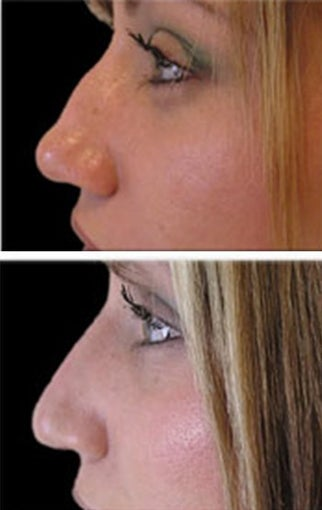 Radiesse for nose reshaping before 6519