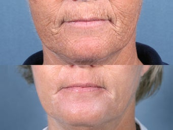 Laser Resurfacing before 104653