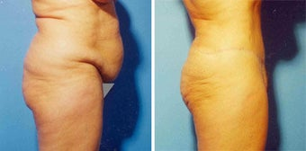 Abdominoplasty before 294758