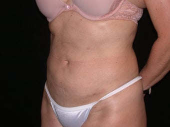 Liposuction after 199084
