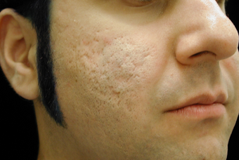 CO2 Affirm - Acne Scars before 200609