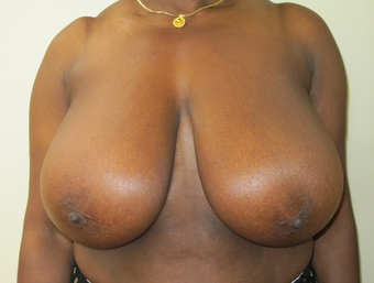 Breast Reduction before 410405