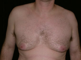 Gynecomastia Reduction Surgery before 233769