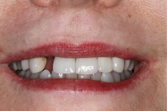Cosmetic Dentistry - Fixed Bridge before 254392