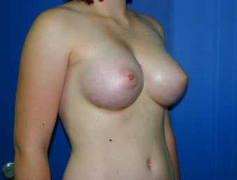 Breast Augmentation 578454