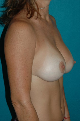 Breast Augmentation after 118253