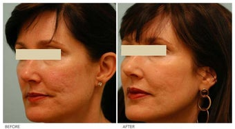 Acne Scarring Correction before 136793