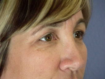 Eyelid Surgery  after 306461