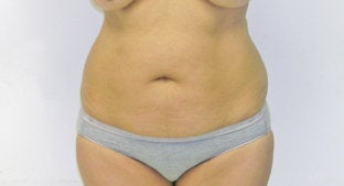 Abdominoplasty  before 491366