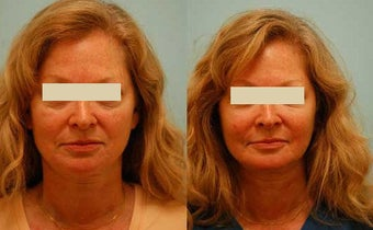 Fat Transfer/Fat Grafting/Facial Rejuvenation before 136346