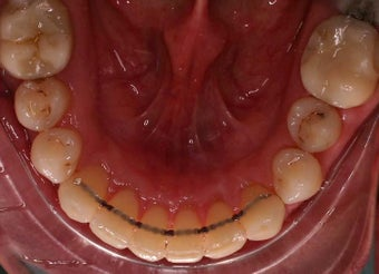 Invisalign after 240204