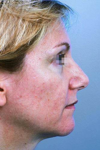 Fractional CO2 Laser Resurfacing  before 114176