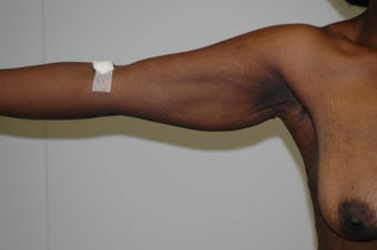 Arm Lift (brachioplasty) 333738