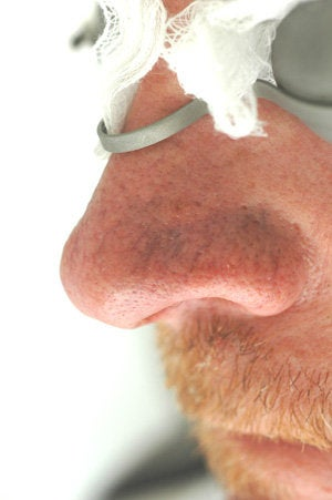 Nose spider vein removal before 106563