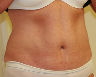 Abdominoplasty (Tummy Tuck) after 232390
