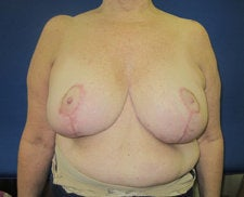 Breast Reduction after 572276