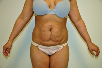 Abdominoplasty before 491027