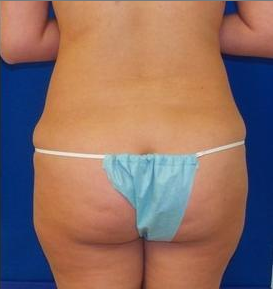 Laser Liposuction 220308