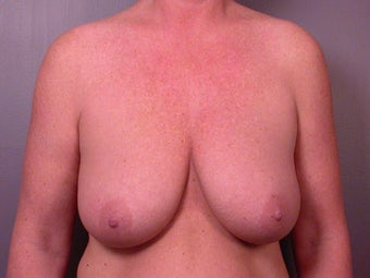 Breast Lift before 321468