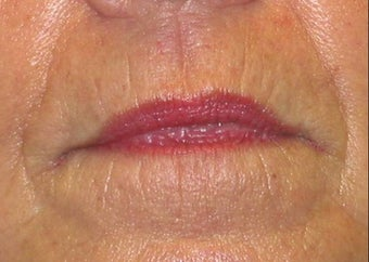 Juvederm effacement of perioral lines before 84413