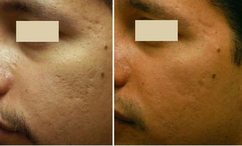 Acne Scarring Correction before 136794