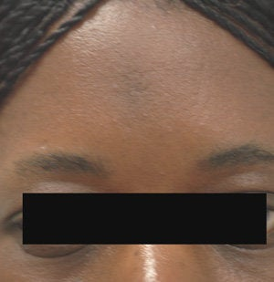 Scar Removal for Black Skin after 179173