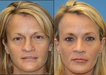 cleft palate rhinoplasty before 442587