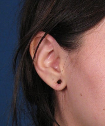 Earlobe Gauge Repair before 446438