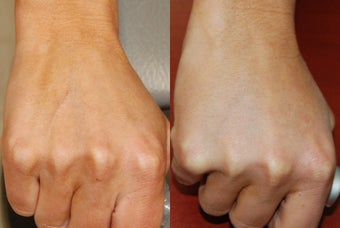 Hand Rejuvenation with Silikon-1000
