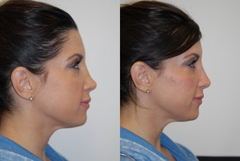 Restylane before 583492