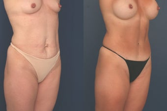 Full Tummy Tuck after 369651