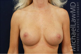 Breast Augmentation after 629087