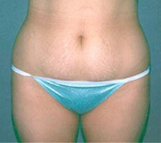 Smartlipo before 401651