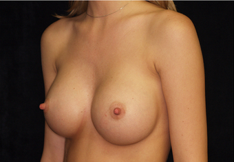 Breast Augmentation 335974