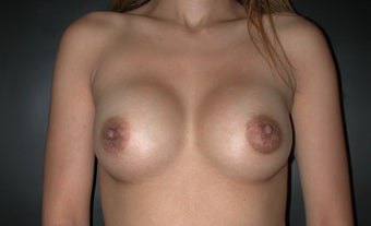 Breast Augmentation after 110084