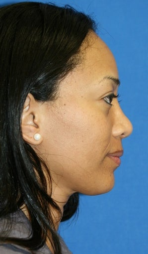 rhinoplasty after 264040