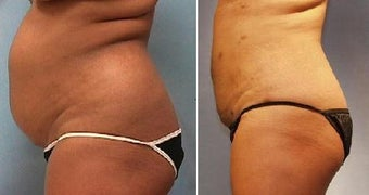 Smartlipo Abdomen before 212251
